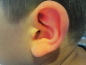 Homeopathy for Ear Infection